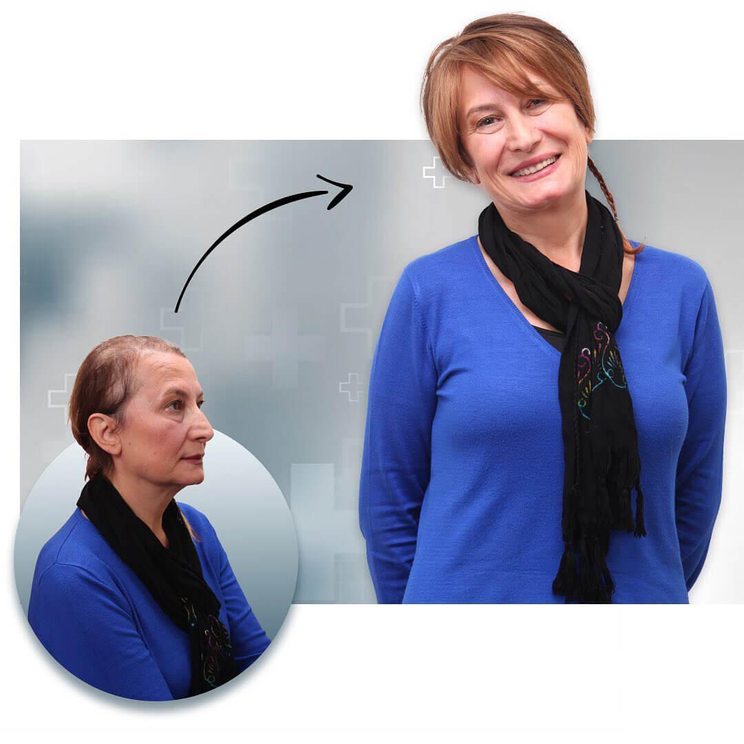 Protez Saç Öncesi ve Sonrası